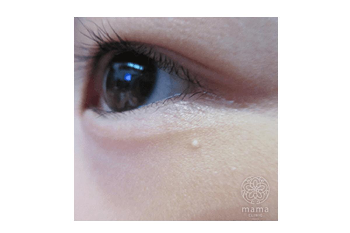 稗粒腫(はいりゅうしゅ)