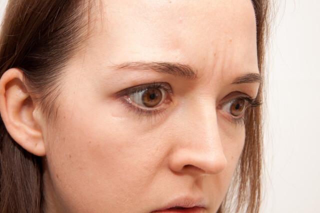 眉間シワ 40代 美容液