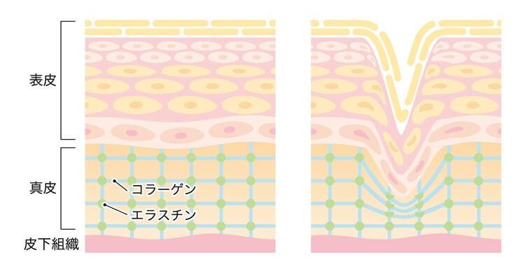 プラセンタサプリの効果