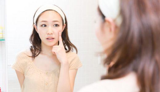 乾燥大人ニキビのための化粧水おすすめ7選!~選ぶポイントも教えます!~
