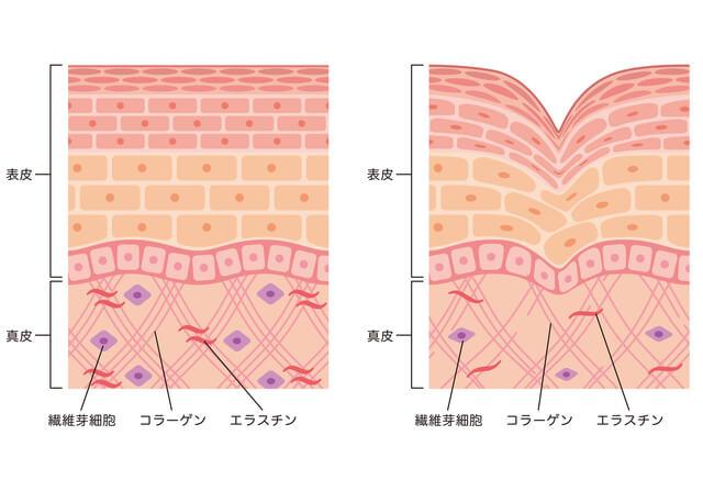 エイジングケア ポーラBA バーシカン 線維芽細胞