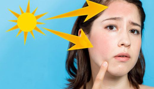 【医師監修】うっかり日焼け対処法と応急処置に揃えておきたいスキンケアアイテムとは?