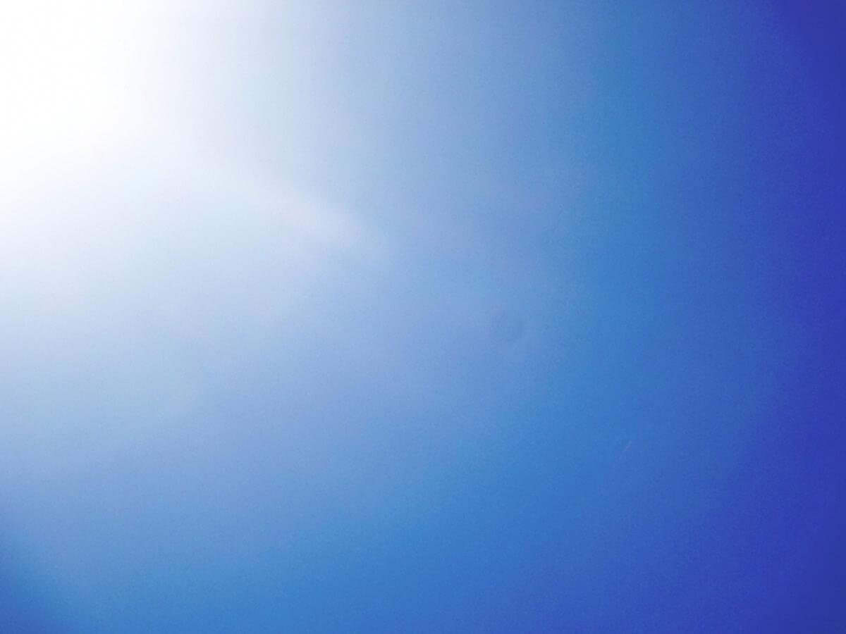 うっかり日焼け,対処法