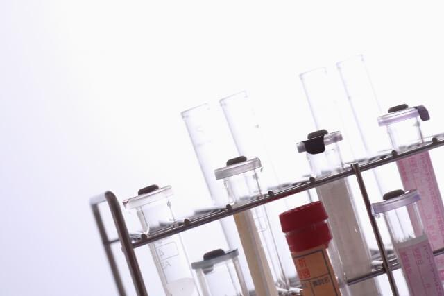 炭酸美容 炭酸ミスト、おすすめ プリュ カーボニック リバイバルミスト